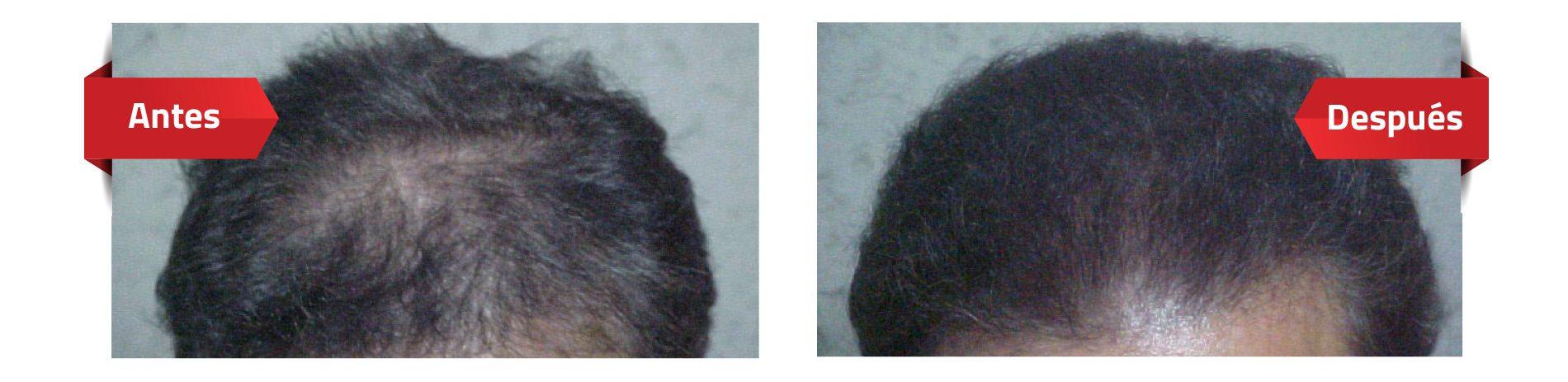 Casos de éxito caída de cabello