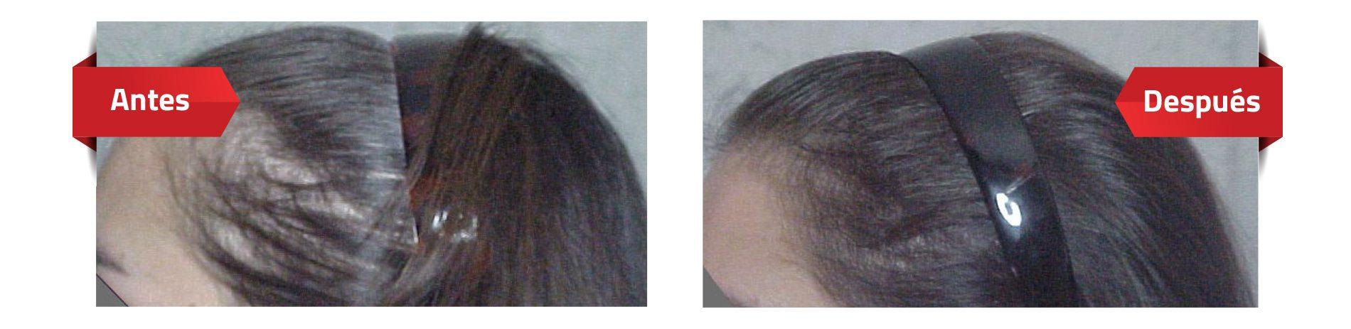 Perdida de cabello mujeres